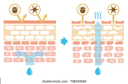 Sectional view of the skin.Comparison illustration of protection effect between healthy skin and wounded skin. No text.