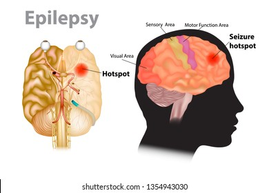 Seizures epilepsy - Seizure hotspot. Medical illustration of a brain with epilepsy