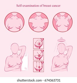 Self examination of breast cancer. Medicine, pathology, anatomy, physiology, health. Info-graphic. Vector illustration. Health-care medicine poster or banner template.