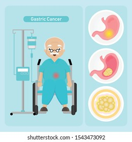 Senior man Patient with Gastric Cancer in cartoon style.