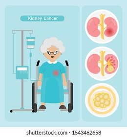 Senior woman Patient with Kidney Cancer in cartoon style.