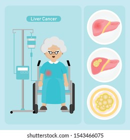 Senior woman Patient with Liver Cancer in cartoon style.