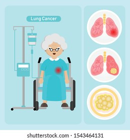 Senior woman Patient with Lung Cancer in cartoon style.