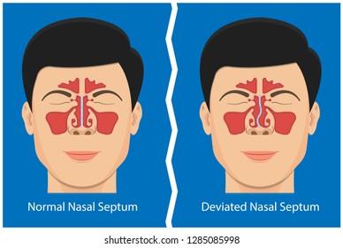 Nasal Septum Images, Stock Photos & Vectors | Shutterstock