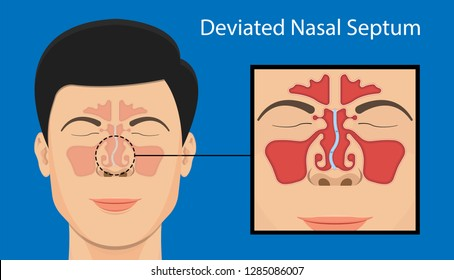 Septoplasty deviated nasal septum breath block blocked swell Nosebleed