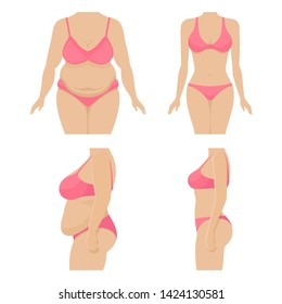 Set body of a woman before and after losing weight. Fat and thin female body. Belly and breasts of a girl after losing weight. Vector illustration isolated on white, flat.