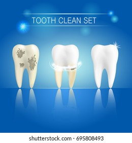 Set of clean and dirty tooth on blue background, clearing tooth process. Teeth whitening concept. Vector illustration