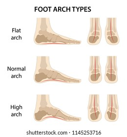 Set of foot arch types. Vector illustration