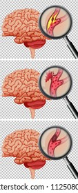 A Set of Human Brain With Stroke illustration