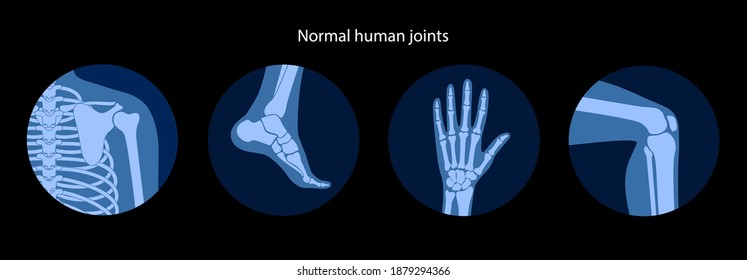 Set with human shoulder, knee, ankle and wrist icons. Normal joints and bones anatomy. Skeleton medical poster. Orthopedic or chiropractic treatment. Anatomical logo concept. Flat vector illustration.