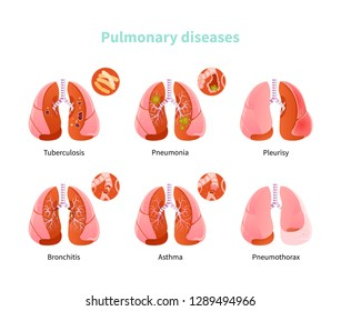 Set lung diseases. Tuberculosis, pneumonia, pleurisy, bronchitis asthma and pneumatox Vector illustration