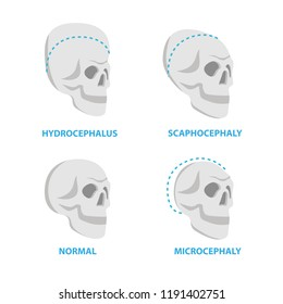 Set of Skulls normal and deformed,  hydrocephalus, scaphocephaly, microcephaly vector flat icons, skull medical illustrations, anatomical infographic elements isolated on white background.