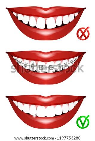 Set Smiles Curved Teeth Teeth Braces Stock Vector Royalty Free