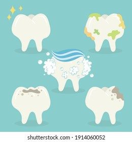 Set of teeth vector illustration isolated. Strong teeth, limestone tooth, hole in tooth, tooth decay. Dentist and dental vector cartoon.