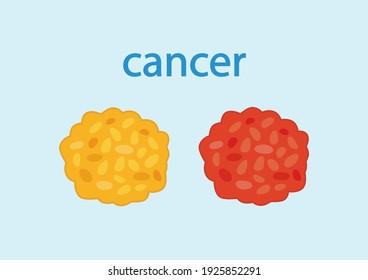 Set of tumor cancer cells attacking human cell on blue background. pathogen, virus, tumor. Vector illustration.
