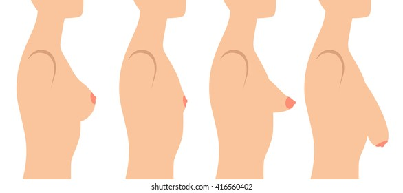Set with woman bust . Tuberous, sagging, small and perfect breast.