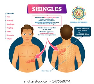 Shingles vector illustration. Labeled medical skin virus explanation scheme. Varicella zoster illness symptoms list with stripe of blisters appearance. Infogarphic with nerve tissue epidermis disorder