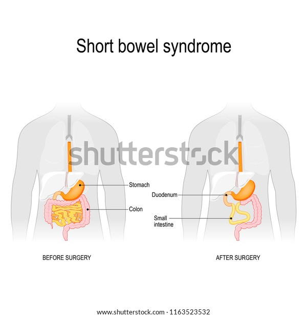 short gut. Before surgery and after surgery. Short bowel syndrome is a disorder caused by a lack of part of small intestine. Vector illustration for biology, scientific, and medical use.