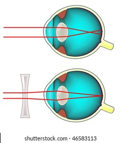 Shortsighted eye corrected with a concave lens