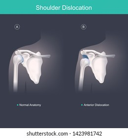 Shoulder Dislocation. This is use for explain and compare when the head of the humerus is out of the shoulder joint include shoulder pain. Anatomy body human illustration.
