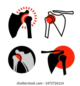 Shoulder osteoarthritis icons. Arthritis pictograms. Joint pain. Editable illustrations isolated on a white background. Medical, healthcare, elderly diseases graphic concept. Vector set