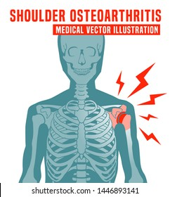 Shoulder osteoarthritis image with skeleton scheme. Spine bones injury. Fracture sign. Editable vector illustration in red, blue, pink colors isolated on white background. Medical, healthcare concept