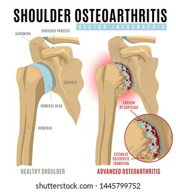 Shoulder osteoarthritis infographic. Realistic bones scheme. Joint pain. Editable vector illustration isolated on a white background. Medical, healthcare, elderly diseases graphic concept