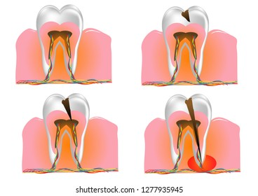 sick and healthy teeth on white background