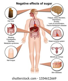 Side effects of sugar on the human body 3d medical vector illustration
