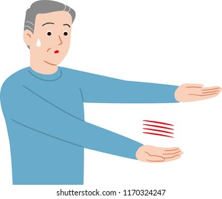 A sign of stroke. Arm paralysis