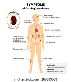 Signs and symptoms of Cushing's syndrome. Labeled. Human silhouette with internal organs. Vector illustration