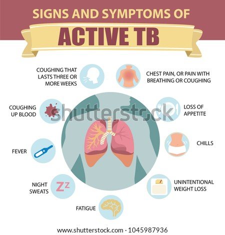 Signs Symptoms Pulmonary Tuberculosis Active Tb Stock. Access Online Training Dentist In Nampa Idaho. Top Video Game Schools Dish Network Fresno Ca. Scholarship Single Mother Blue Shield Log In. Psychologist Years Of School. Video Editing Business Auto Accident Pictures. Manage Contacts On Iphone Dog Insurance Quote. Formula For Constipated Baby. Aalsmeer Flower Auction Digital Camera Course