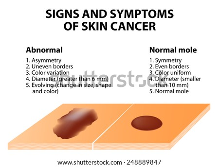 signs symptoms skin cancer abcde guideline のベクター画像素材