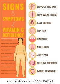 Signs and symptoms of Vitamin C deficiency. Icons set. Isolated vector illustration with a woman figure in a flat style. Beauty, health care and eutrophy concept.