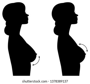 Silhouette woman in profile of different forms of breasts and breast implants.Breast augmentation