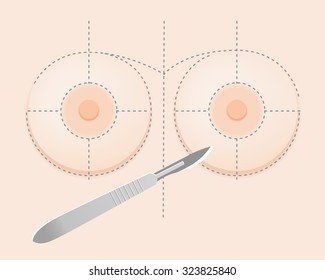 Silicone breast implant surgery with surgical knife and guidelines
