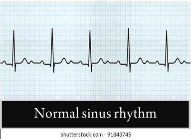 Sinus rhythm on ECG. Vector. Professional information