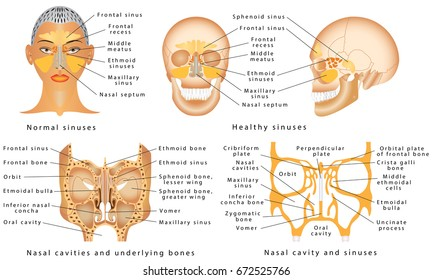 Sinuses of Nose. Human Anatomy - Sinus Diagram. Anatomy of the Nose. Nasal cavity bones. Anatomy of paranasal sinuses. Sinusitis - It is the inflammation of the maxillary sinuses