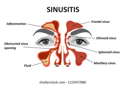 Sinusitis. Healthy and inflammation nasal sinus