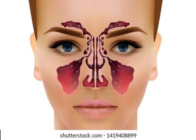 Sinusitis. Healthy and inflammation nasal sinus vector illustration