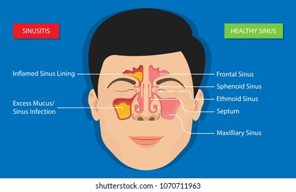 Sinusitis medical treatment