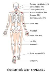 Sites of rheumatoid arthritis and relative frequency.