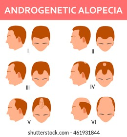 Six stages of male androgenetic alopecia.Vector illustration of male head