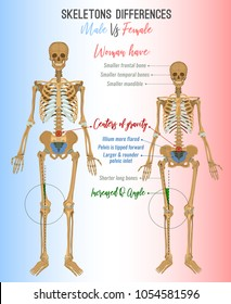 Skeleton differences poster. Male in comparison with female. Major gender nuances. Vector illustration isolated on a light background.