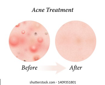 Skin acne treatment before and after. Vector skin acne pimples, facial cleanser and face comsemtic package design