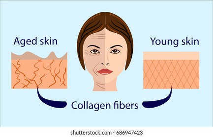 skin aging diagrams. young skin is firm tight, its collagen Vector illustration with a face and two types of skin - aged and young