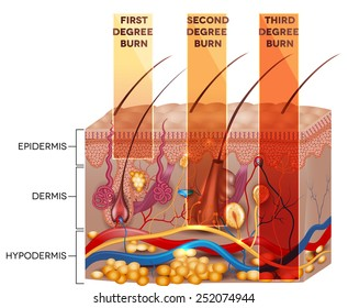Skin burn classification. First, second and third degree skin burns. Detailed skin anatomy.