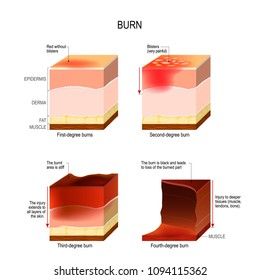 skin burn. four degrees of burns. type of injury to skin. step of burn