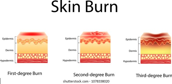 skin burn. Three degrees of burns. type of injury to skin, Vector illustration
