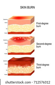 skin burn. Three degrees of burns. type of injury to skin